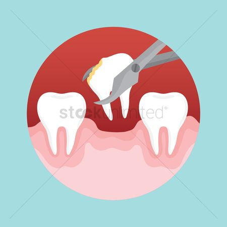 Dentist : Removing decayed tooth