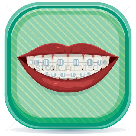 Tooth with braces : Shiny white teeth with braces