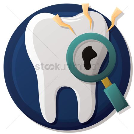 Dentist : Tooth with caries