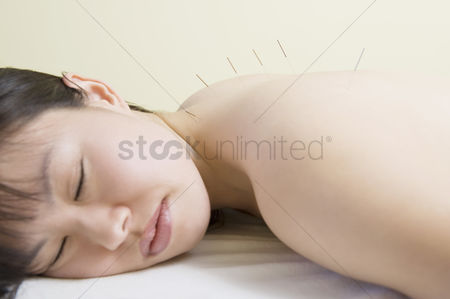 Pressure : Asian woman lies with acupuncture needles in her back