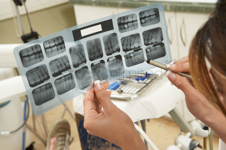 Expertise : Dentist examining x-rays  close-up